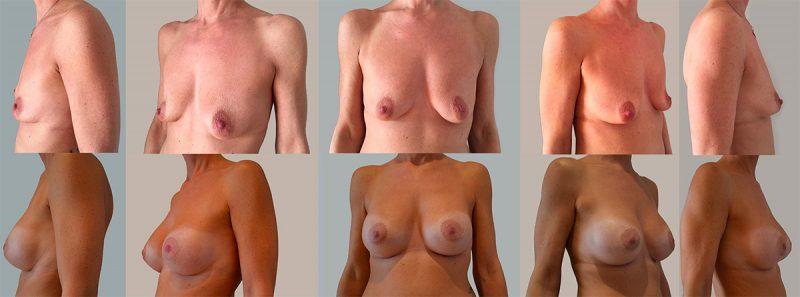 Esempi di mastoplastica additiva, foto prima e dopo risultati