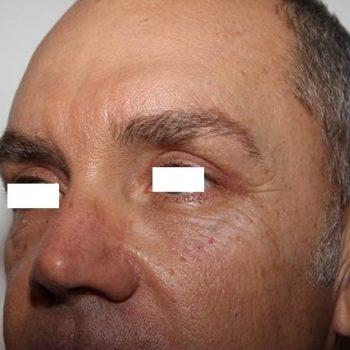 Esempi di Blefaroplastica, foto dopo risultati