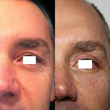 Blefaroplastica, foto prima e dopo
