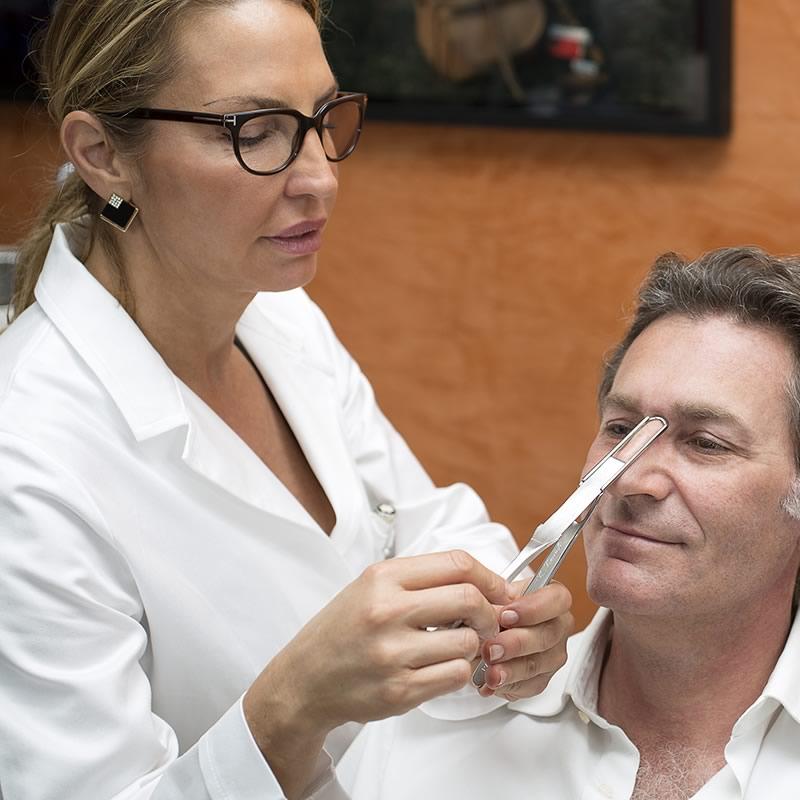 Rinoplastica, intervento di rinoplastica della dott.ssa Luccioli