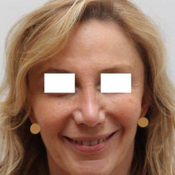 Lifting viso foto frontale dopo