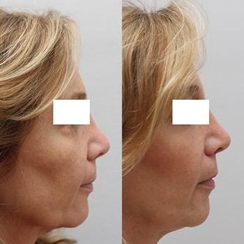 Esempio intervento di lifting viso, foto prima e dopo