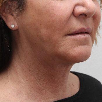 Esempio di lipolaser viso, foto dopo