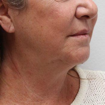 Esempio di lipolaser viso, foto prima