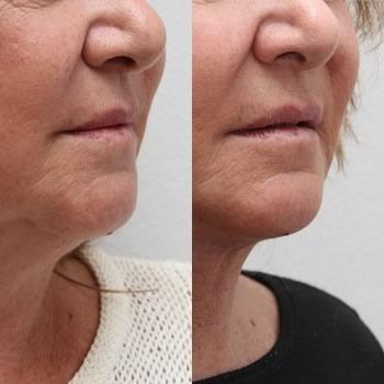 Lipolaser viso, foto prima-dopo