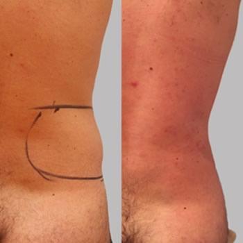 Esempio di liposuzione, foto prima-dopo