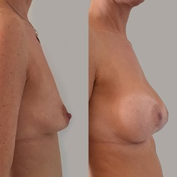 Esempio intervento di mastoplastica additiva, foto prima e dopo