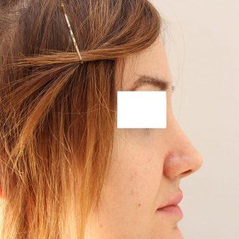 Esempio mentoplastica, foto dopo