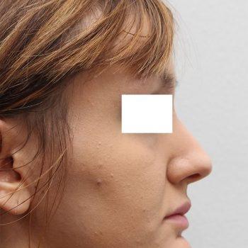Esempio mentoplastica, foto prima