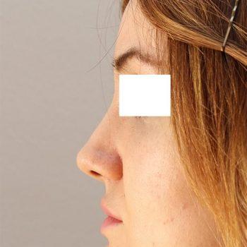 Esempio di mentoplastica, foto dopo