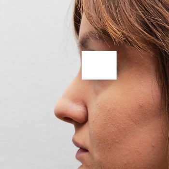 Esempio di mentoplastica, foto prima