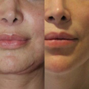 Radiofrequenza bipolare, foto prima e dopo, risultati del trattamento