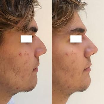 RInofiller, foto prima e dopo, risultati del trattamento