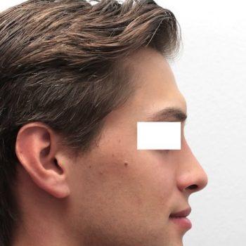 Esempio intervento di rinoplastica, foto dopo