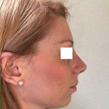 Rinoplastica, foto dopo4, profilo destro