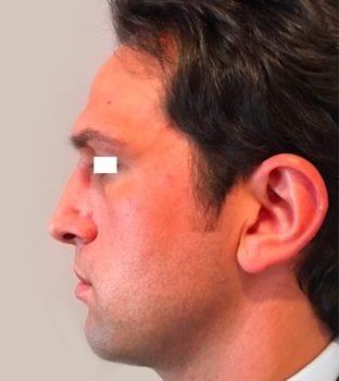 Rinoplastica, foto dopo5, profilo sinistro