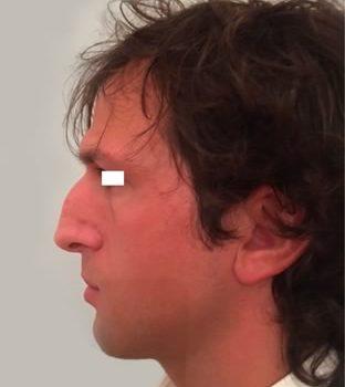 Rinoplastica, foto prima5, profilo sinistro