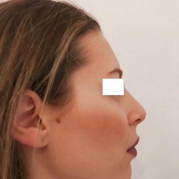 Rinoplastica, foto dopo6, profilo destro