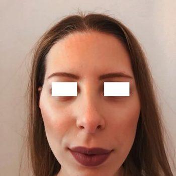 Rinoplastica, foto dopo6, frontale