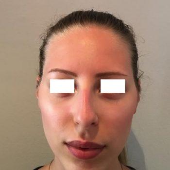 Rinoplastica, foto prima6, frontale