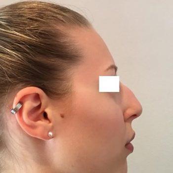 Rinoplastica, foto prima6, profilo destro