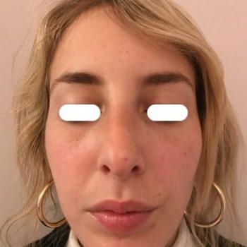Rinoplastica, foto dopo7, frontale