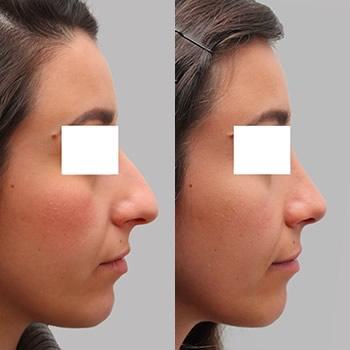 Esempio intervento di rinoplastica, foto prima e dopo